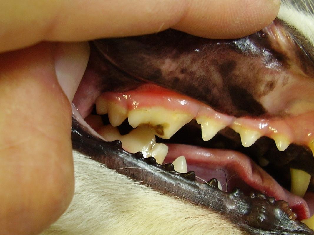 Zlomenina korunky štvrtého maxilárneho premolára